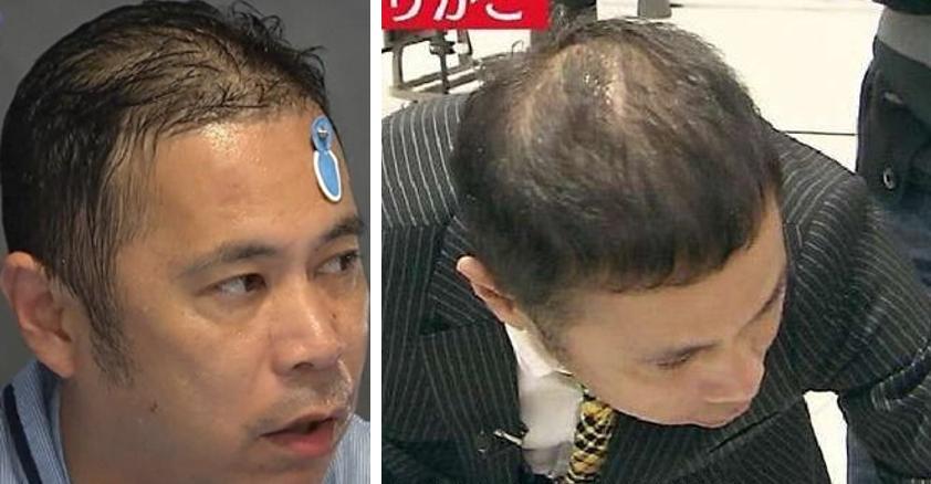 頭頂部 薄毛 芸能人